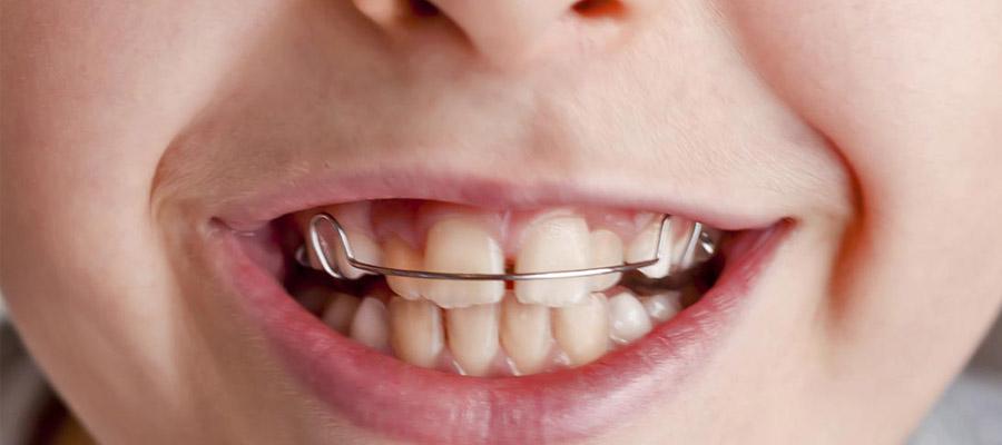 l'orthodontie pour enfant