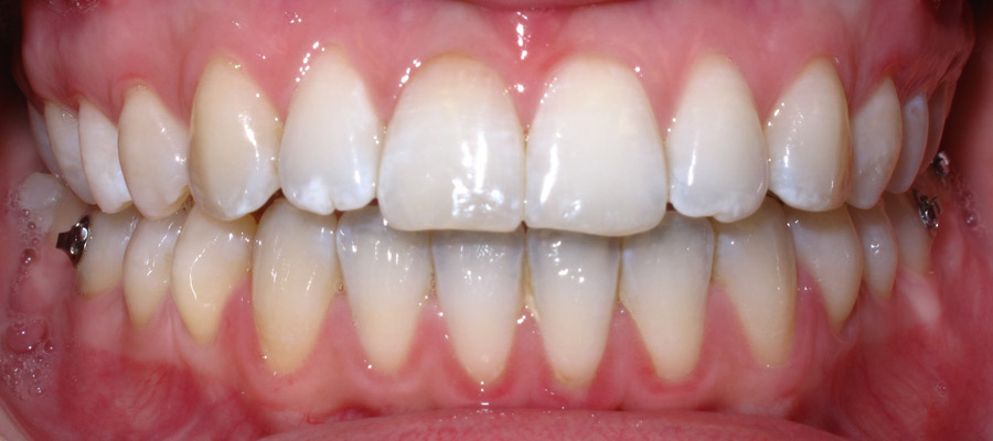 Chirurgie maxillo-faciale