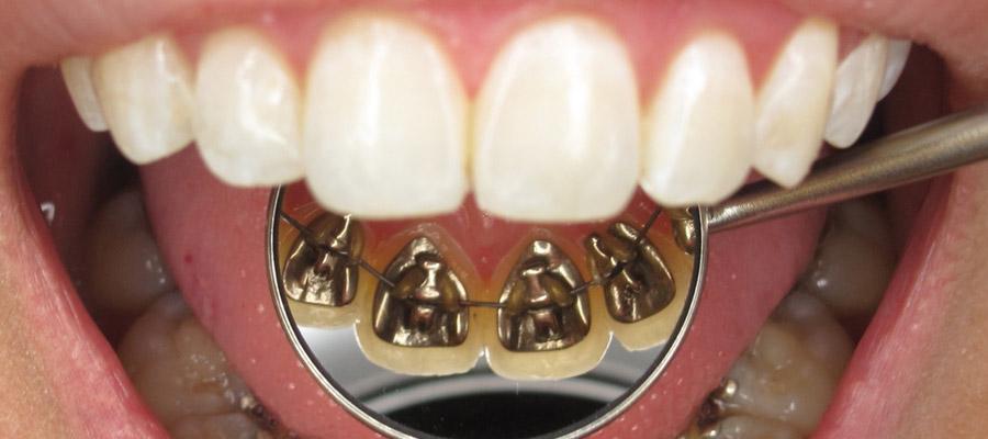 orthodontique pour adultes