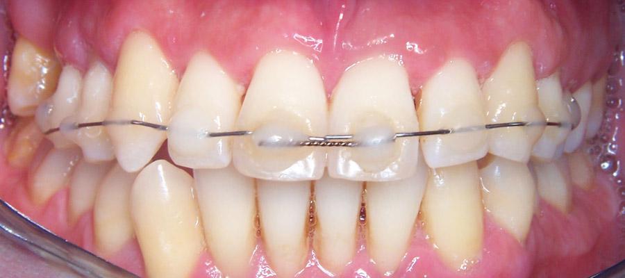 la chirurgie maxillo-faciale