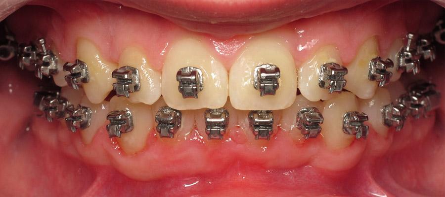orthodontique pour adulte