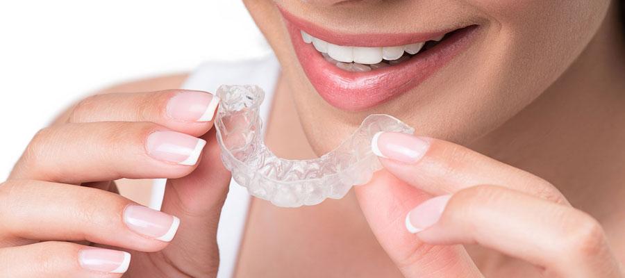 Aligneurs de dents
